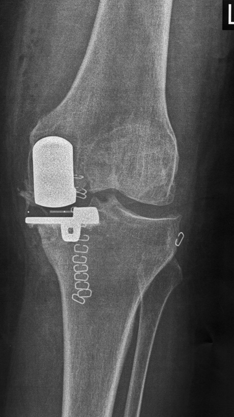 Partial Knee Arthroplasty George D Goudelis Md Ph D