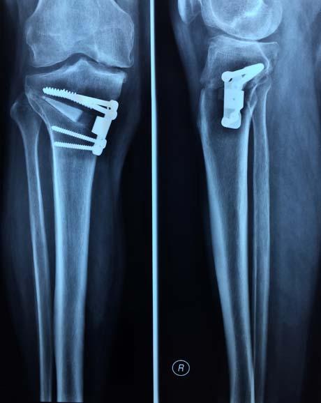 Varus Knee Osteoarthritis Corrective Tibial Osteotomy