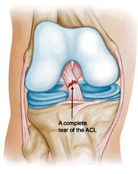 The Anterior Cruciate Ligament Rupture George D Goudelis Md Ph D