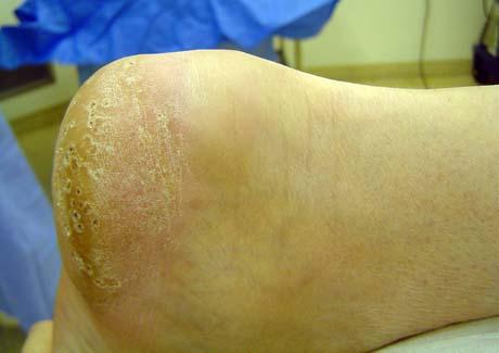 Haglund deformity retrocalcaneal bursitis george d goudelis md