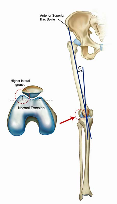 medial pivot knee prothesis The purpose of this study is to evaluate results after total knee arthroplasty using a medial pivot prosthesis with the posterior cruciate ligament (pcl)-retaining.