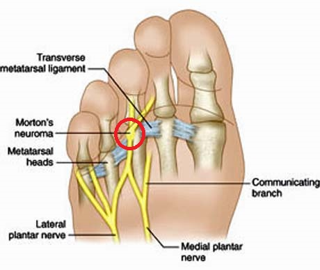 Image result for Morton neuroma
