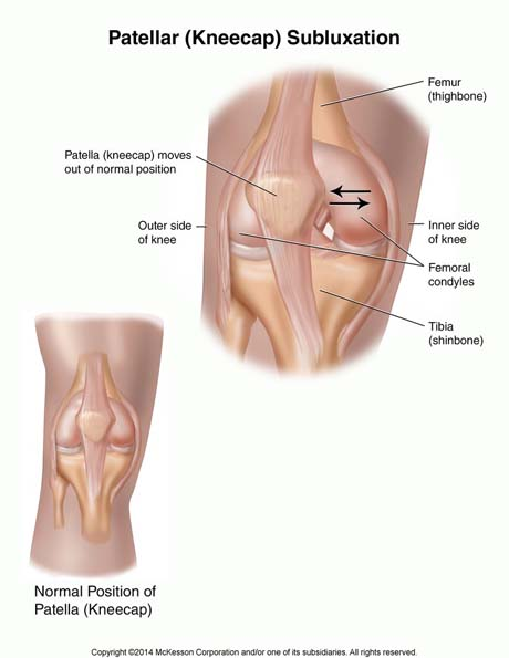 Osgood Schlatter Disease in Adults Causes Signs