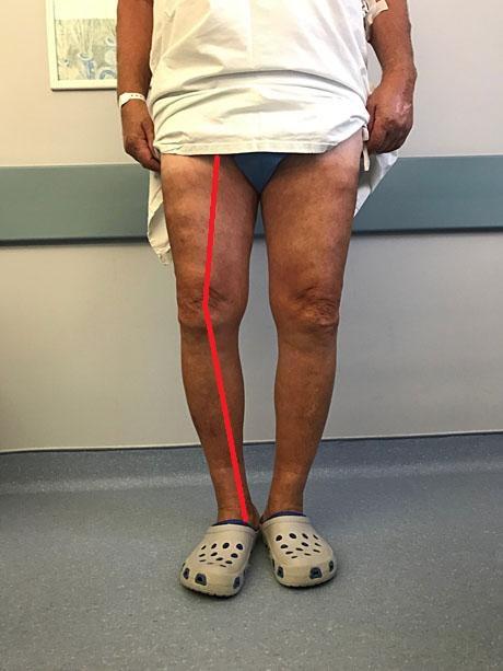 Computer Assisted Knee Arthroplasty Navigation System