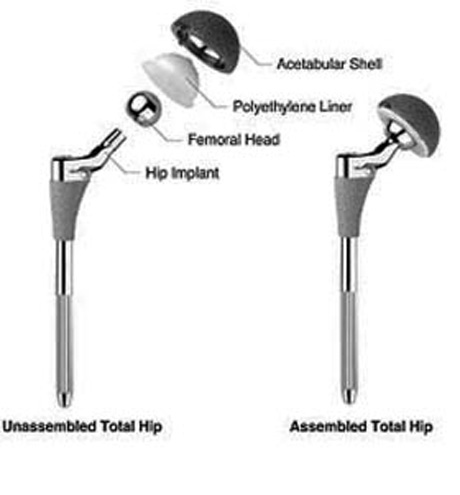titanium hip prothesis – titanium industries periodically sends press releases, newsletters, and other informational publications to it's subscribers  while hip implants are made of .